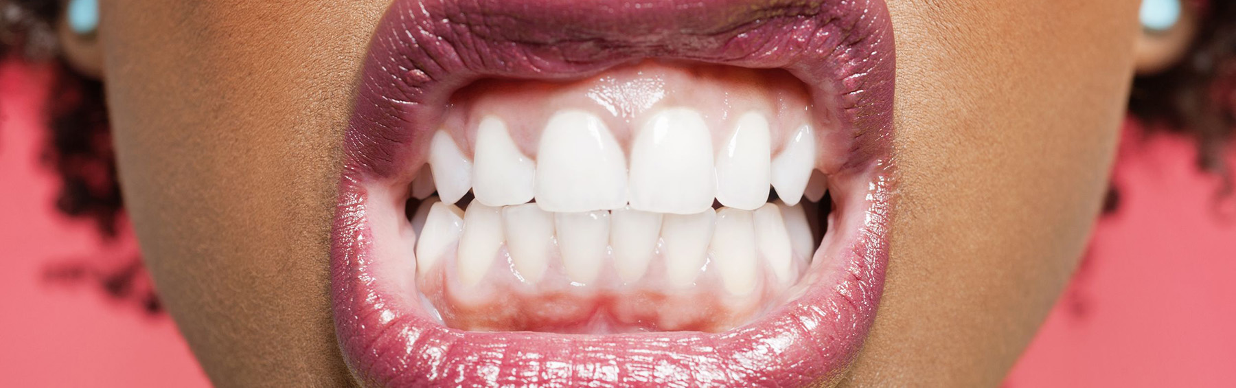 So why is there a bruxism epidemic among middle-aged women?